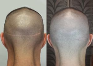 tricopigmentazione_cicatrice_strip
