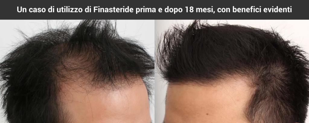 Un utilizzatore di Finasteride prima e dopo 18 mesi