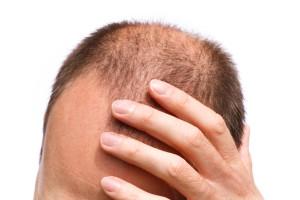 perdita_capelli