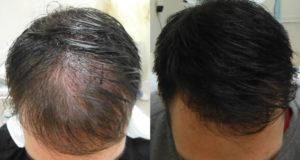 tricopigmentazione effetto