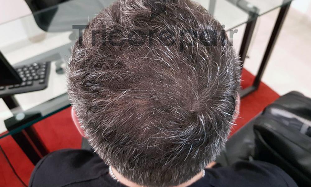 Quando è indicata una tricopigmentazione effetto rasato o densità