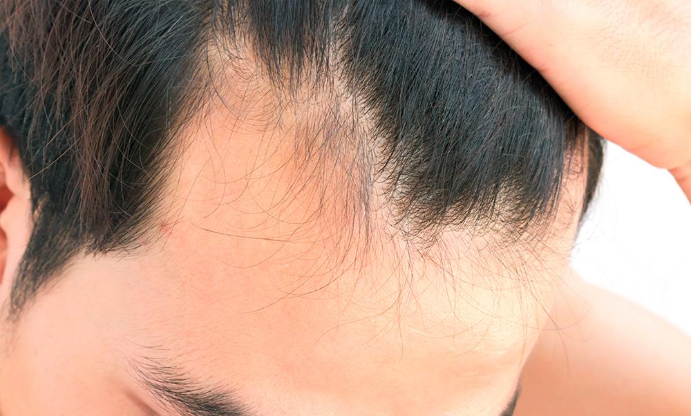 Perdita dei capelli: scopriamo le cause
