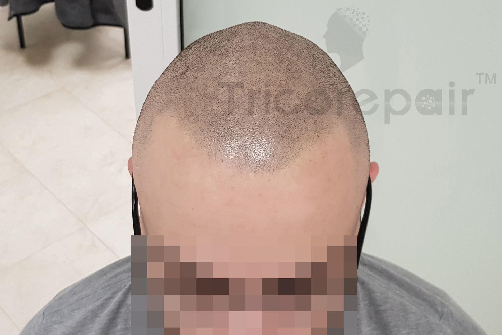 Diradamento fronto-occipitale - Dopo il trattamento