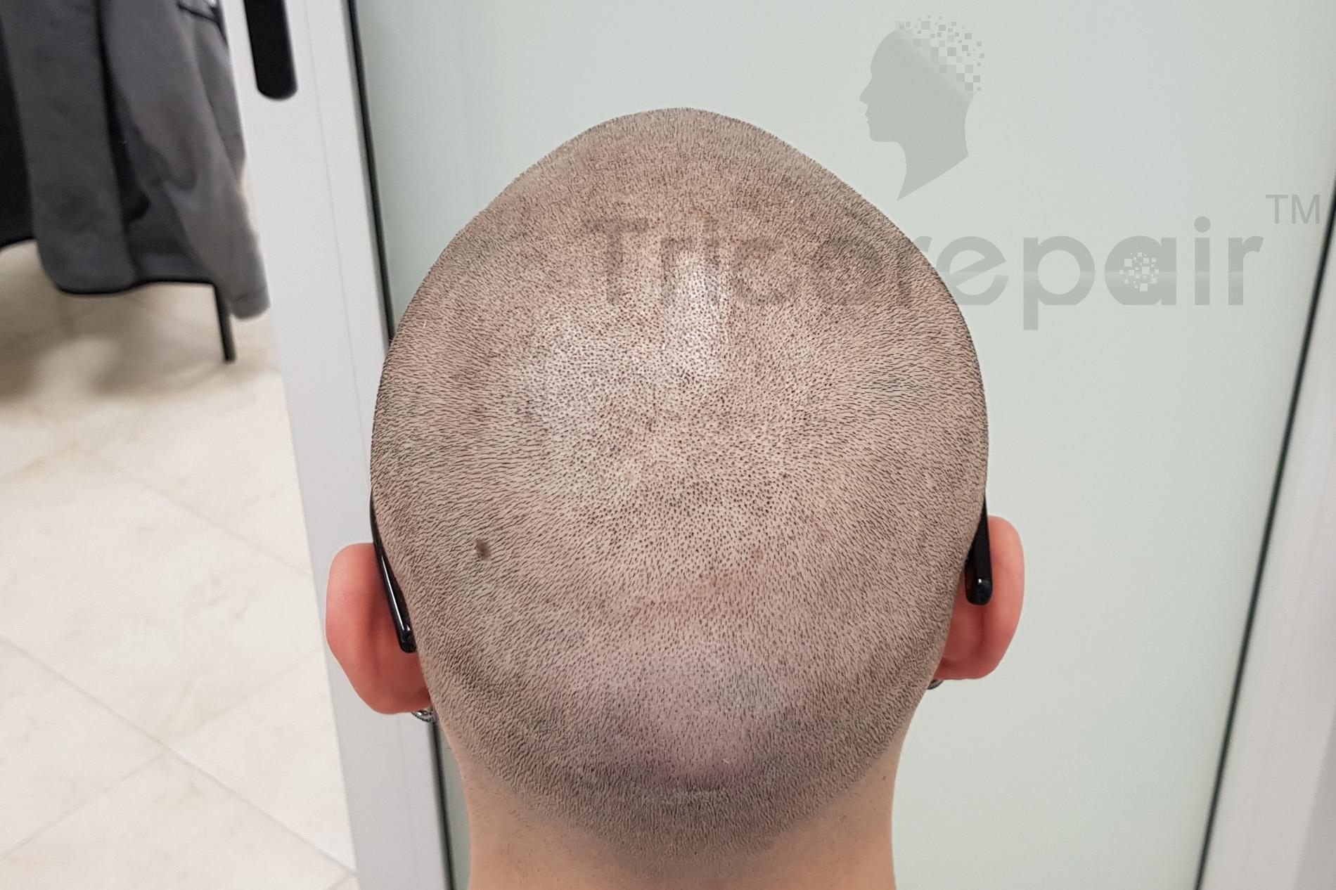Diradamento fronto-occipitale - Dopo il trattamento di tricopigmentazione