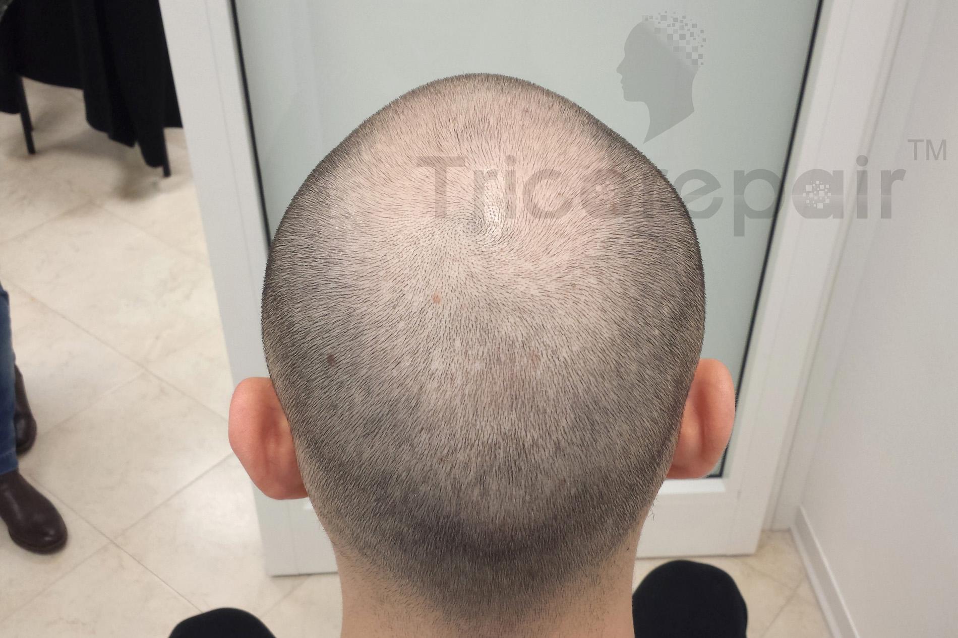 Diradamento fronto-occipitale - Prima del trattamento