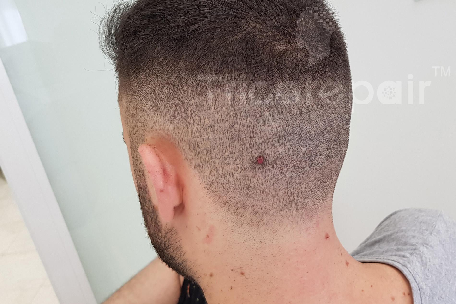 Camouflage cicatrice autotrapianto FUE - Dopo la tricopigmentazione