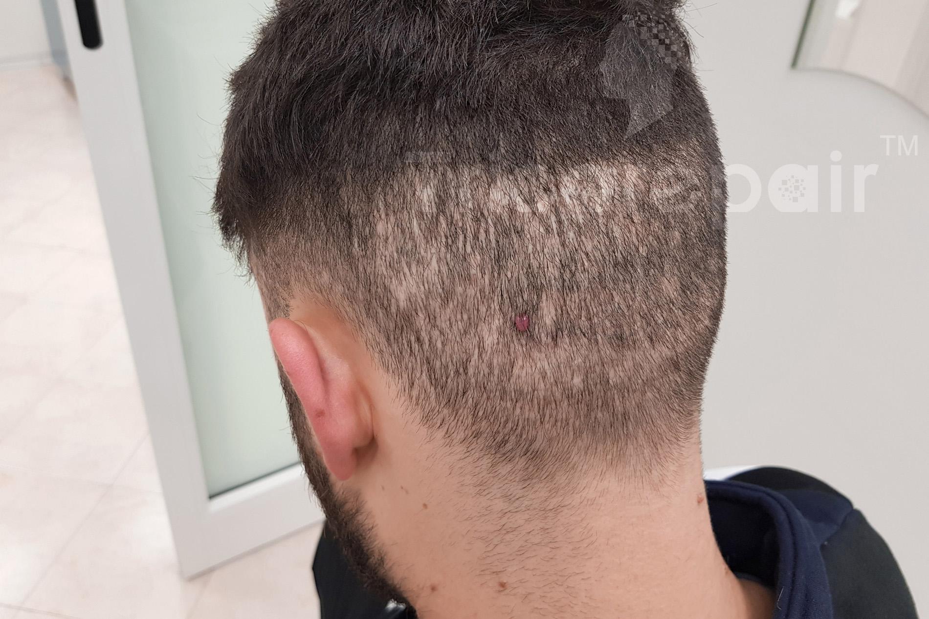 Camouflage cicatrice autotrapianto FUE - Prima del trattamento