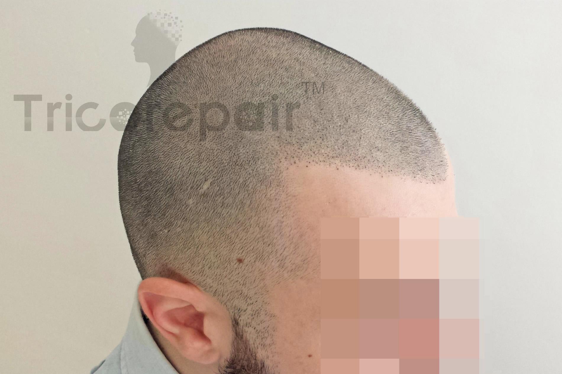 Effetto rasato su innesti post autotrapianto - Dopo il trattamento di tricopigmentazione