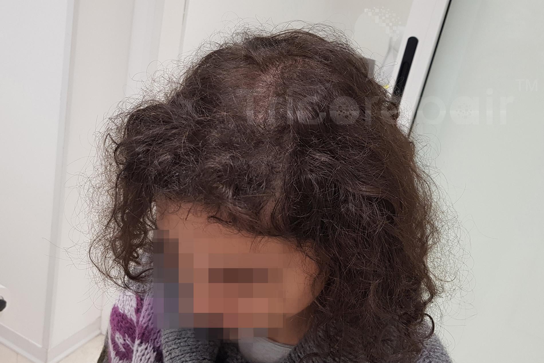 Alopecia femminile - Dopo il trattamento