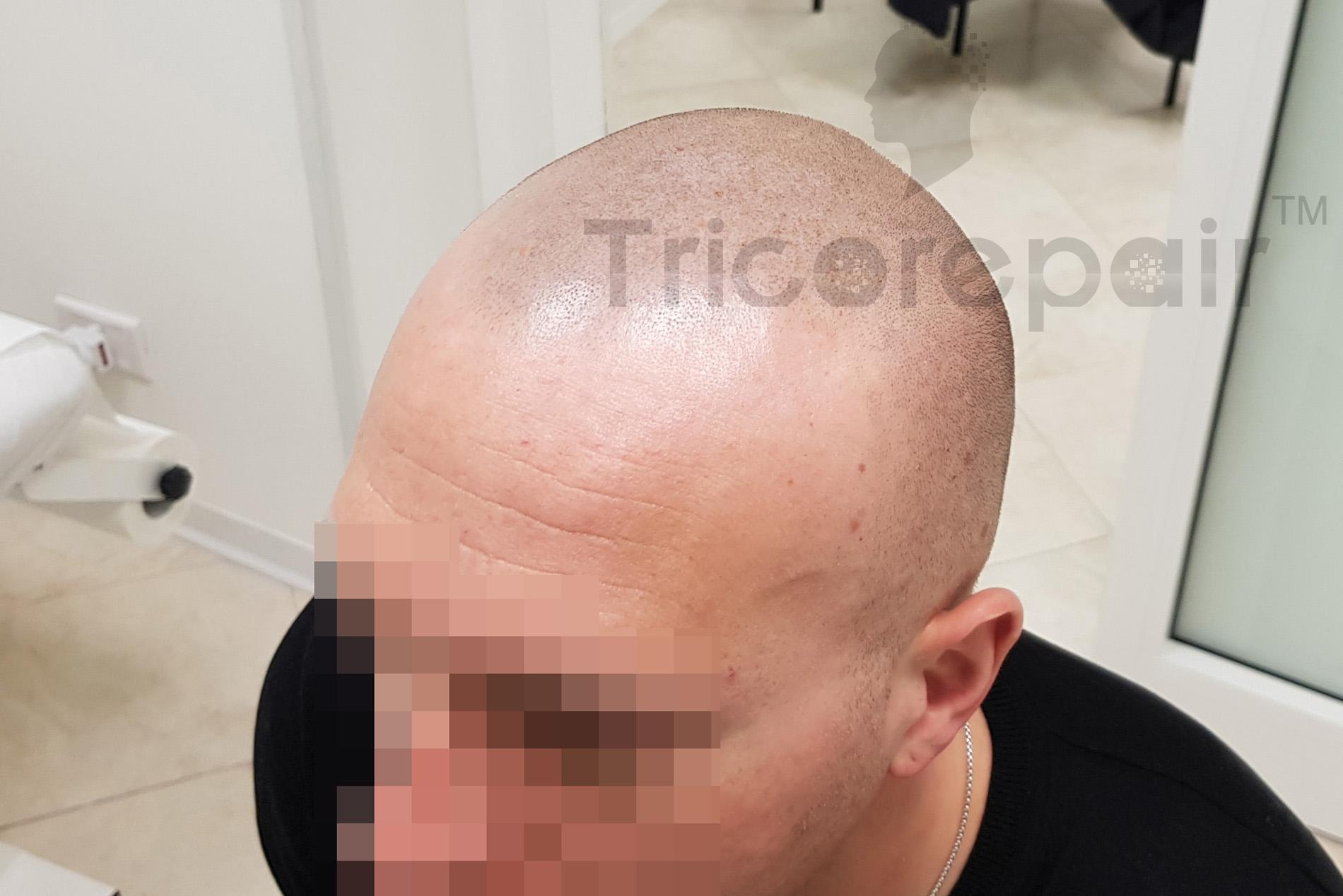 Effetto rasato naturale - Dopo la tricopigmentazione