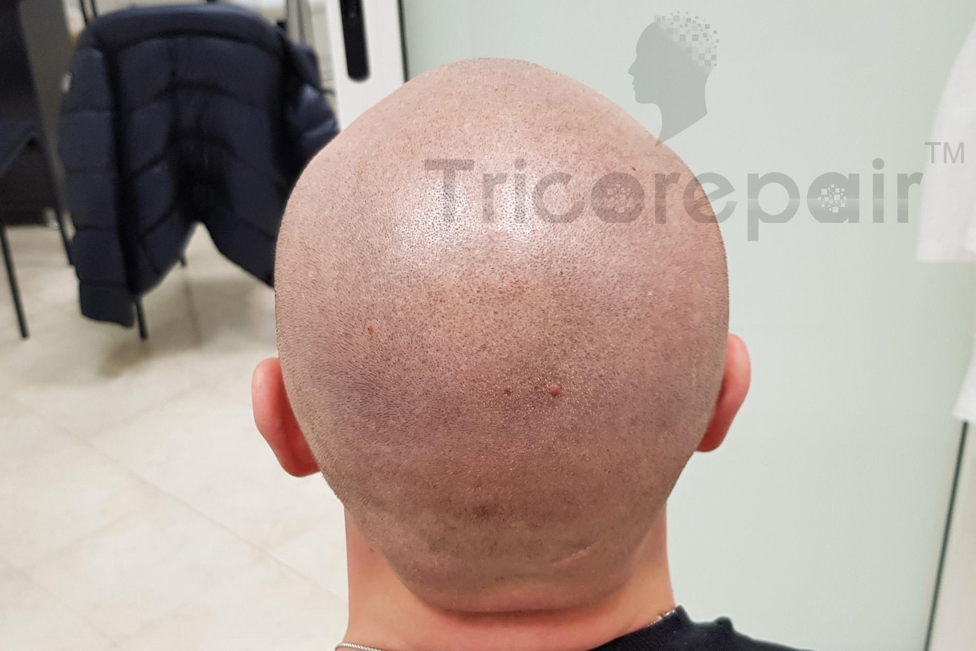 Effetto rasato naturale - Prima del trattamento