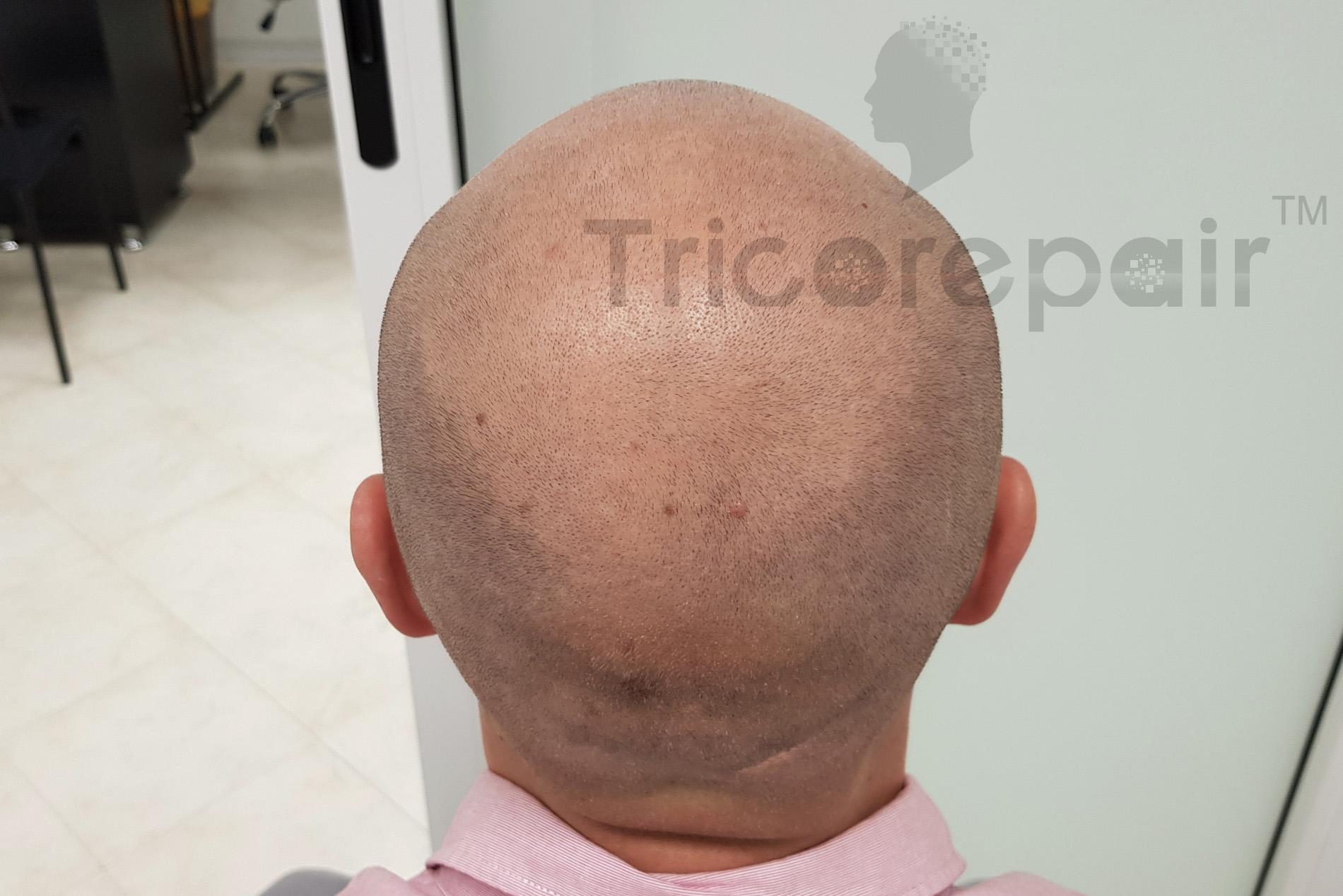 Alopecia femminile - Prima del trattamento