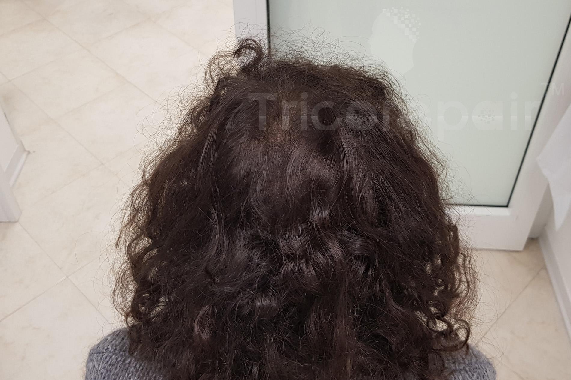 Alopecia femminile - Dopo il trattamento di tricopigmentazione