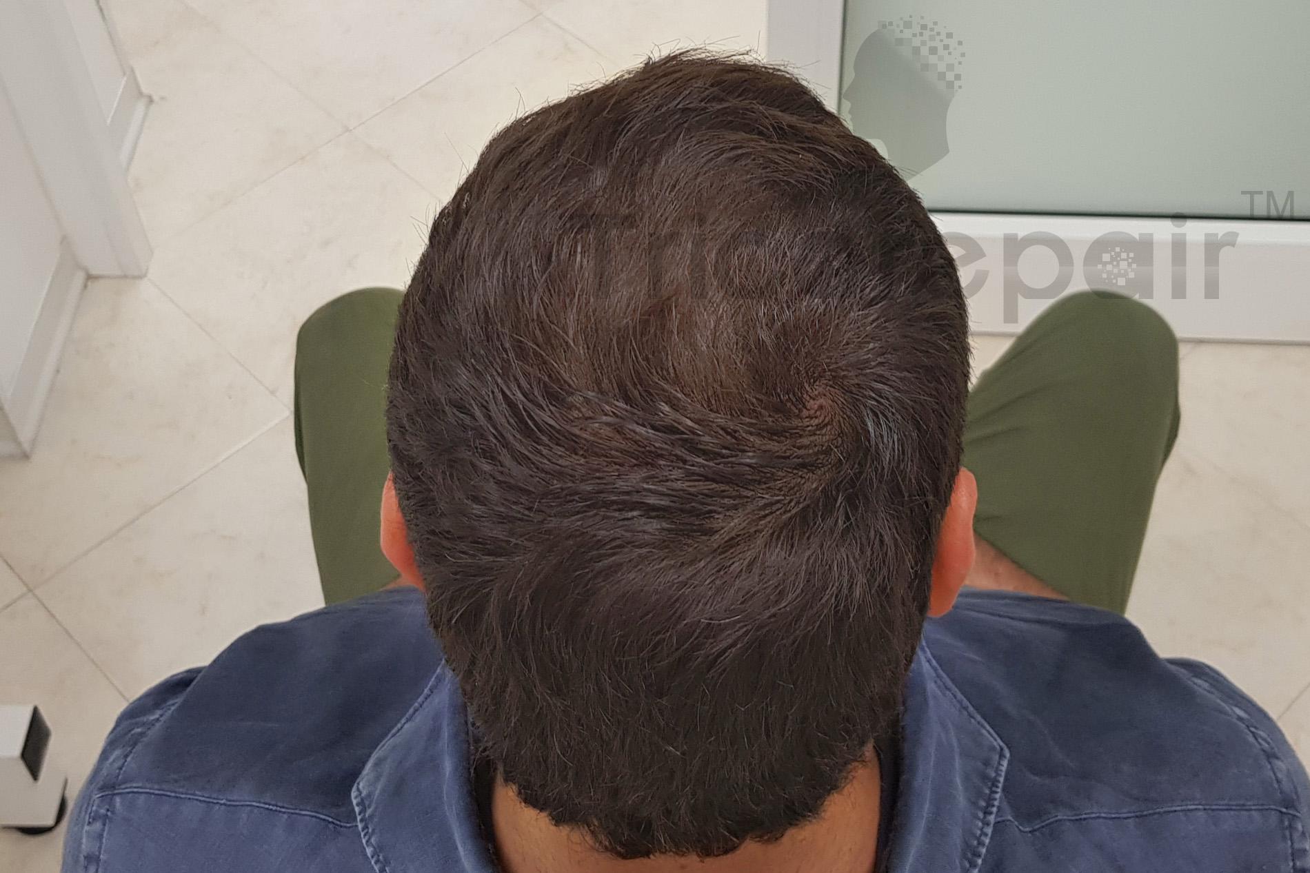 Tricopigmentazione capelli lunghi - dopo il trattamento