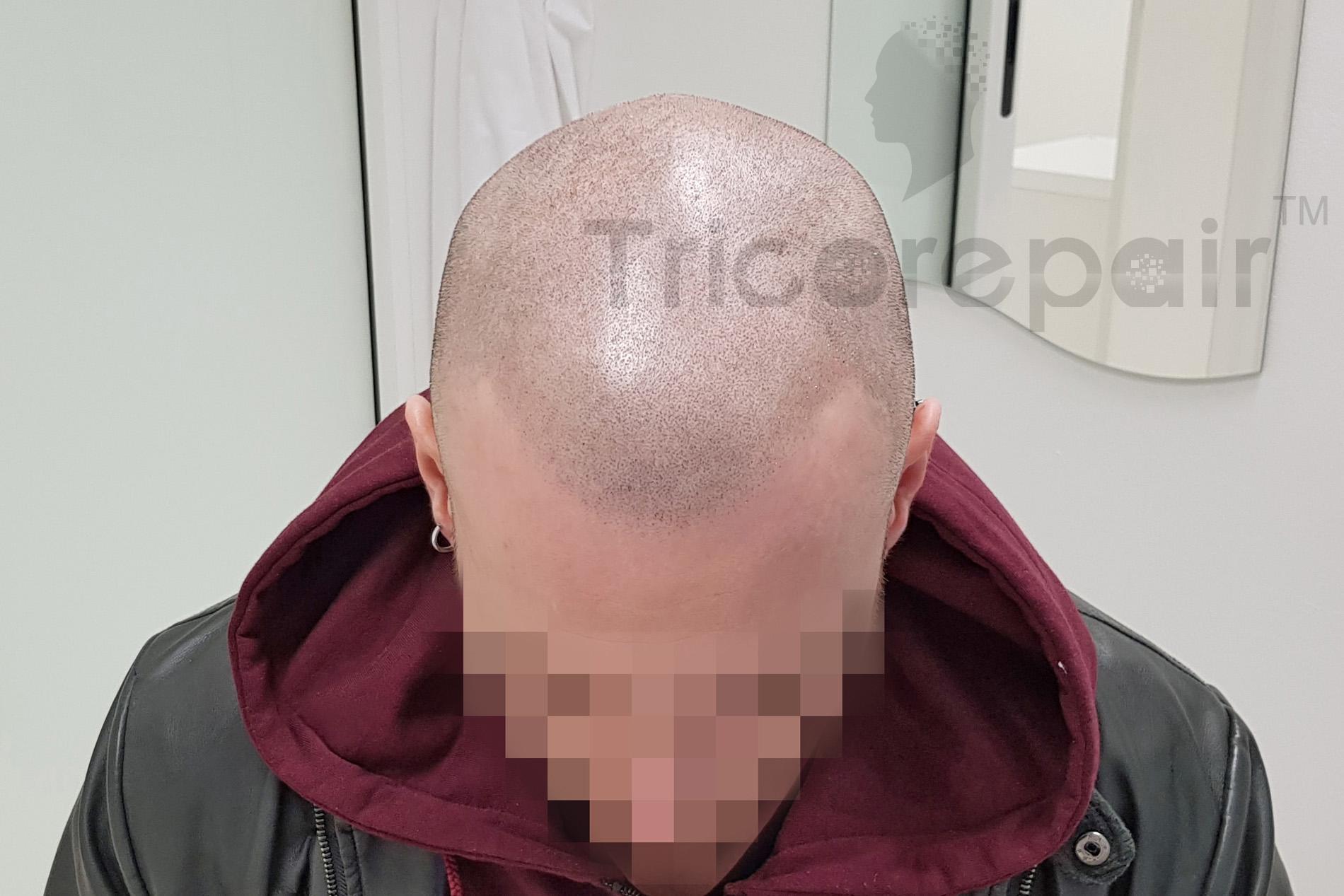 Effetto rasato - Dopo il trattamento