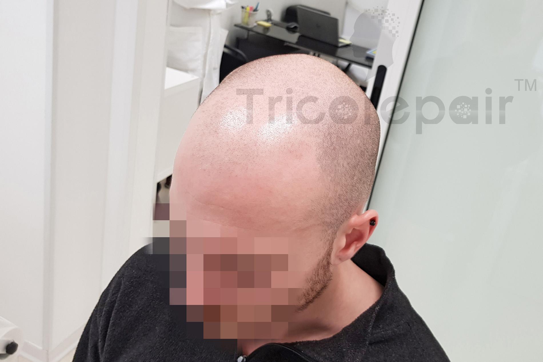 Effetto rasato - Prima del trattamento