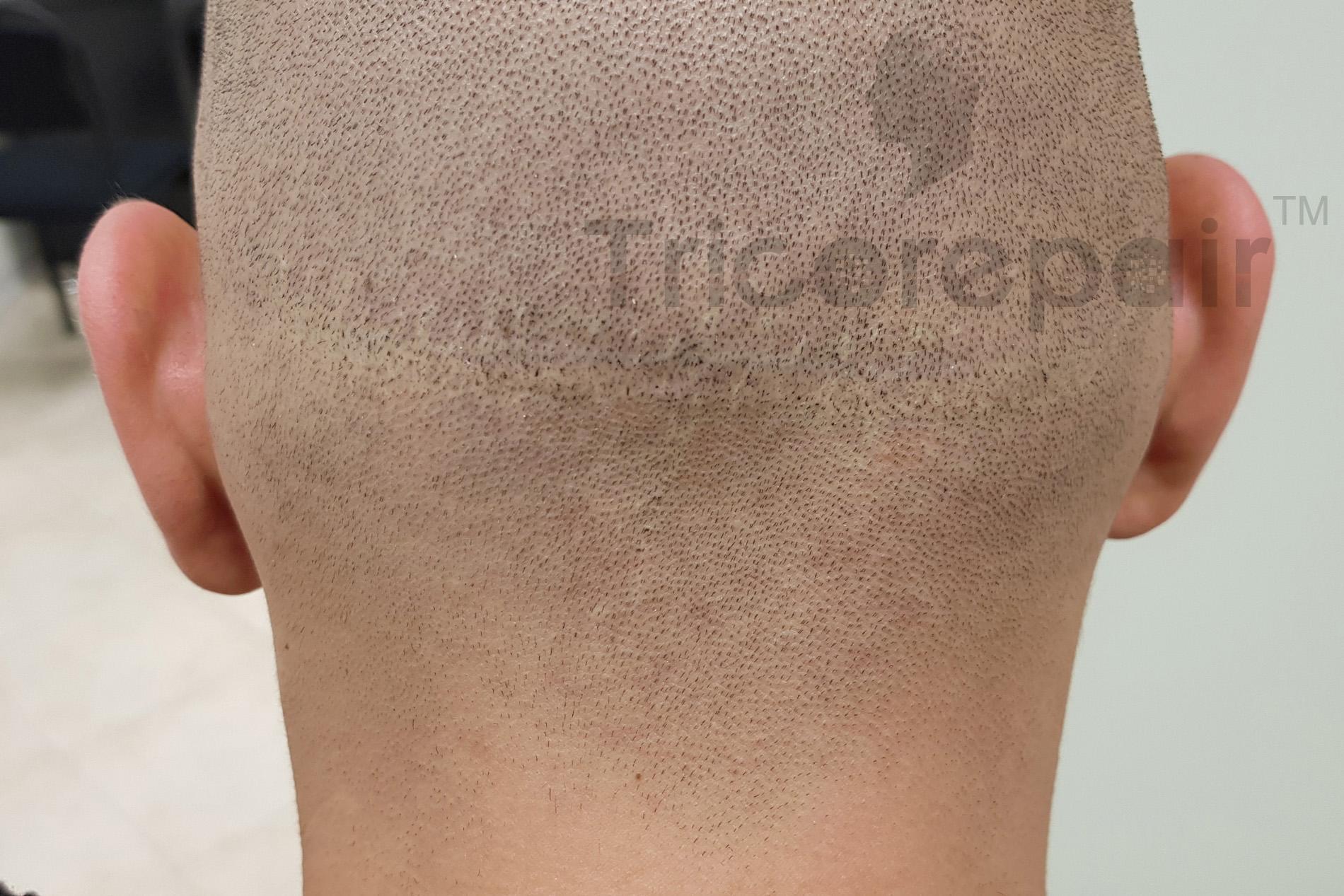 Cicatrice Strip autotrapianto FUT - Dopo il trattamento di tricopigmentazione