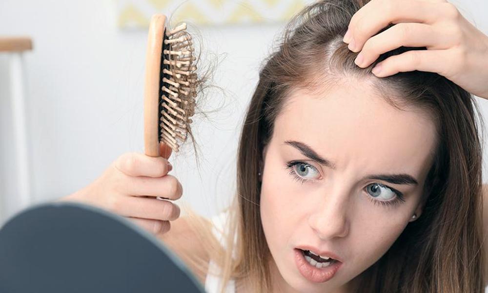 """Alopecia androgenetica """"femminile"""", esiste davvero?"""